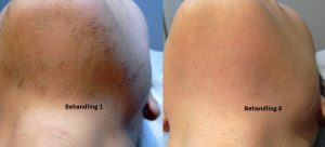 hårborttagning laser priser