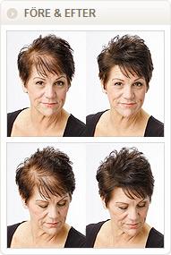 håravfall hos damer