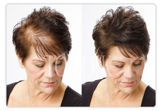 Mot håravfall för tunnhåriga. – Toppik.se
